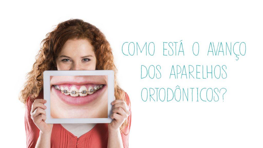 como-esta-avanco-aparelhos-ortodonticos