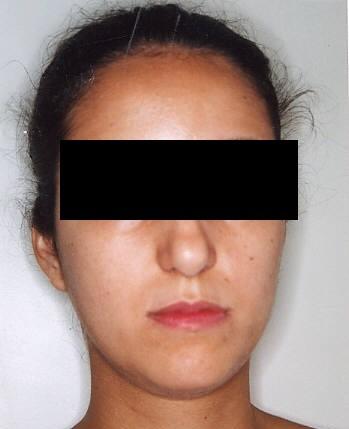 ortodontia, ortodontia dento-facial, ortopedia funcional dos maxilares, bio cibernética bucal, odontologia sistêmica, odontologia estética, aparelho auto-ligado, ortodontia